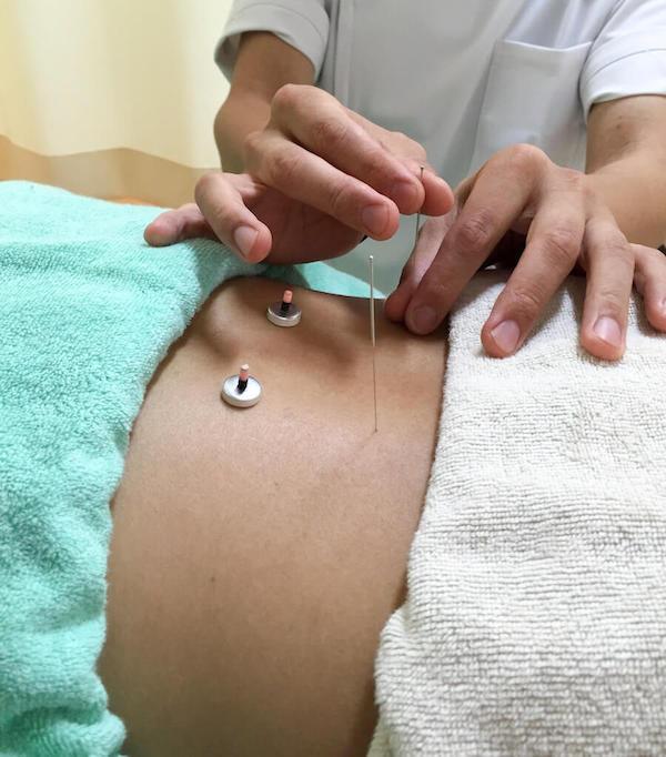 初めての方へ鍼灸治療イメージ図2